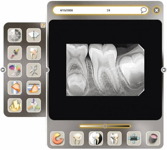 acteon-satelec-sopro-logiciel-dentaire